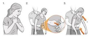 Adult first-aid-for-foreign-body-airway-obstruction
